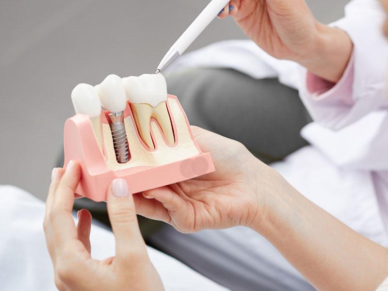 植牙是什麼?一定要植牙嗎?告訴你植牙四大優點