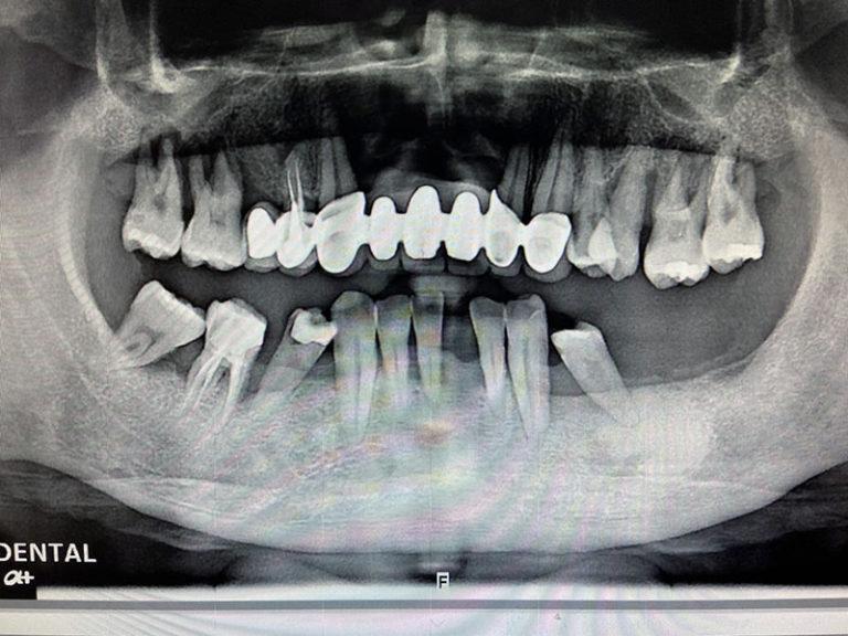 植牙案例宋子濃-1