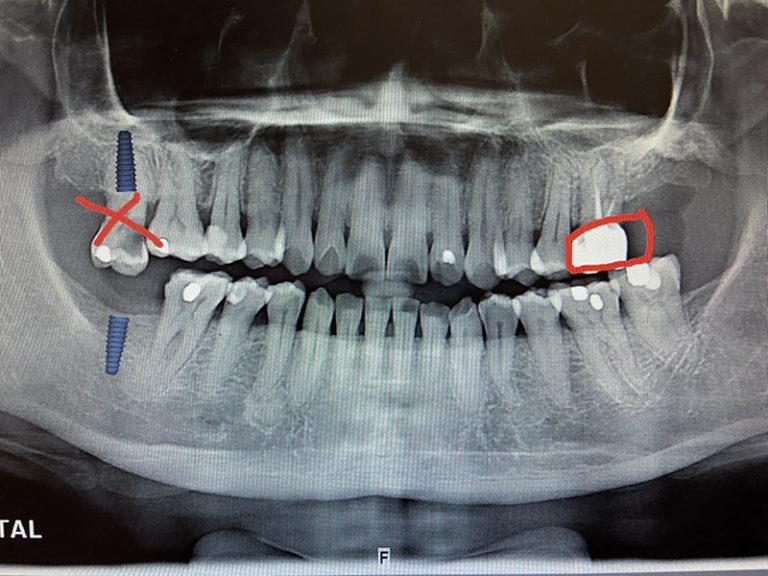 植牙案例張雅媛-1