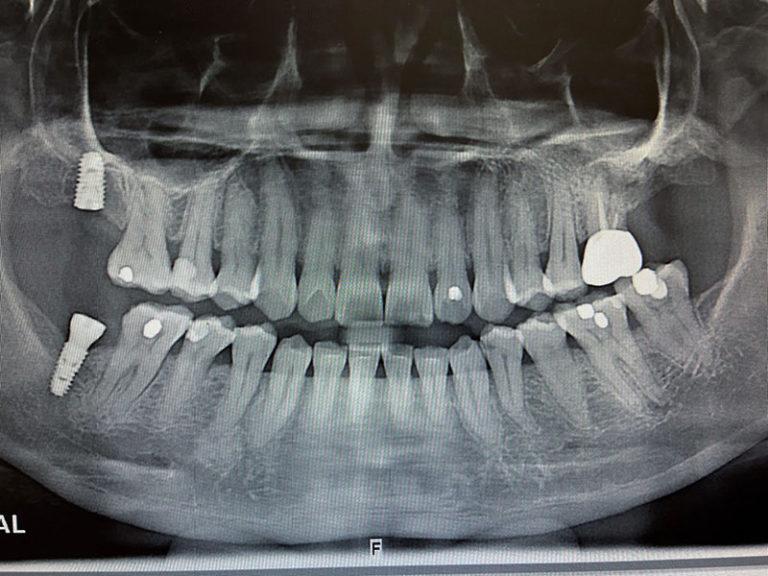 植牙案例張雅媛-2