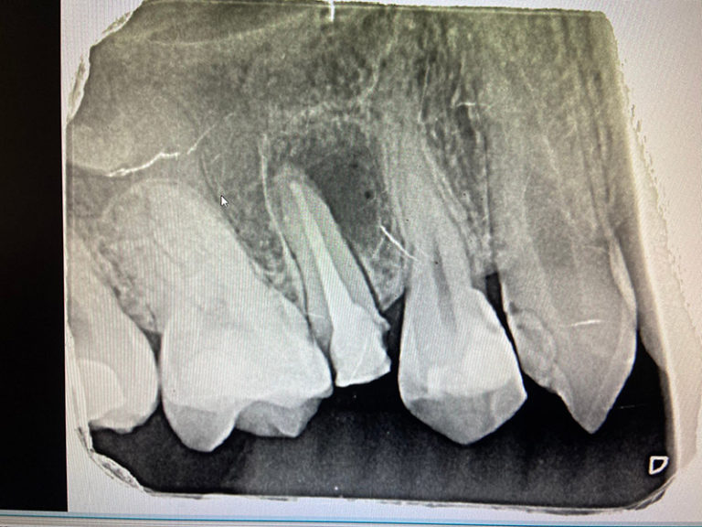 植牙案例鄭小姐-4