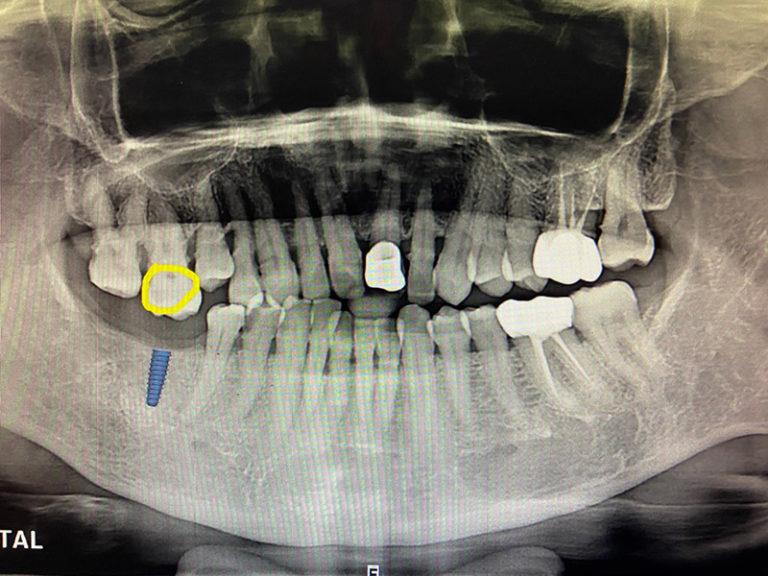 植牙胡女士2