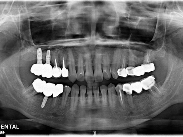 植牙-許思宇-3