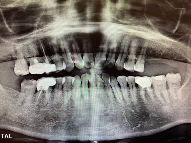 盧香如 植牙2