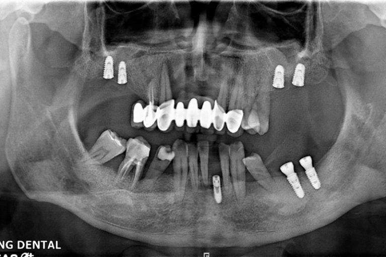植牙案例-宋子濃-2