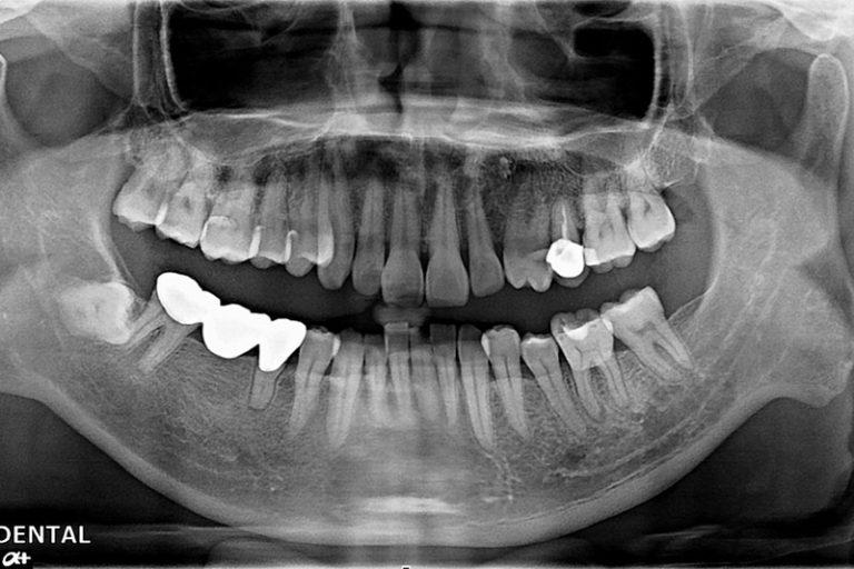 植牙案例-沈夢雄-1