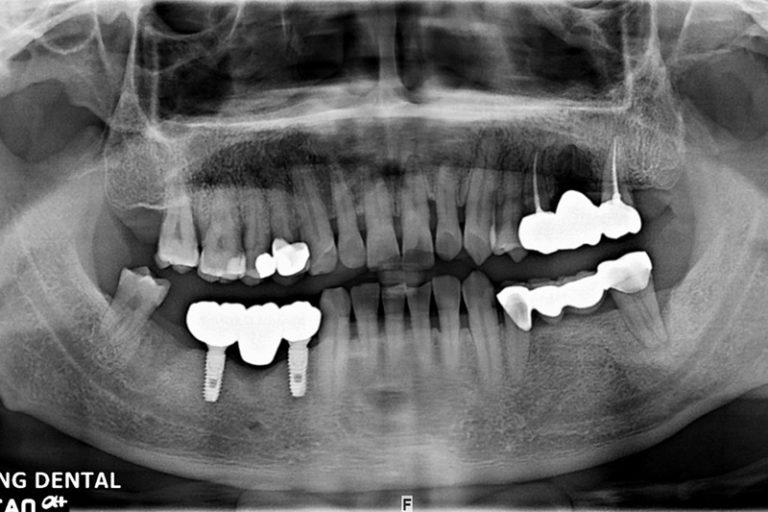 植牙案例-蘇堯文-1