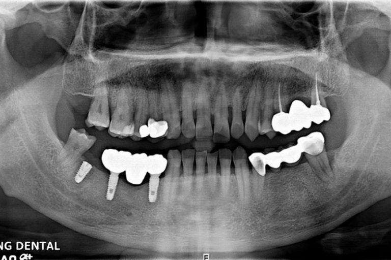 植牙案例-蘇堯文-2